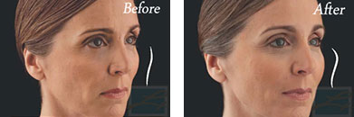 Juvederm voluma - Before after gallery image 8