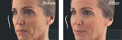 Juvederm voluma - Before after gallery image 9