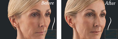 Juvederm voluma - Before after gallery image 10