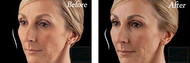 Juvederm voluma - Before after gallery image 11