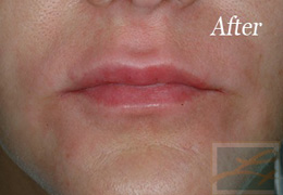 Juvederm New Orleans - Case 1, After