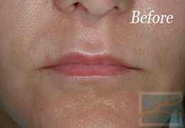 Juvederm New Orleans - Case 1, Before