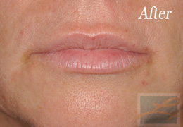 Juvederm New Orleans - Case 2, After