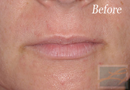 Juvederm New Orleans - Case 2, Before