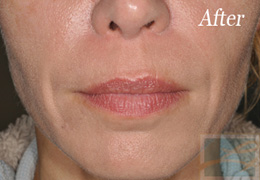 Juvederm New Orleans - Case 3, After