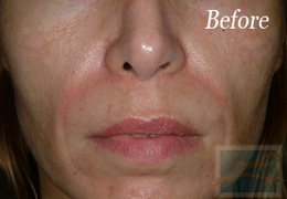 Juvederm New Orleans - Case 3, Before