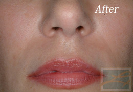 Juvederm New Orleans - Case 4, After