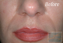 Juvederm New Orleans - Case 4, Before