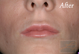 Juvederm New Orleans - Case 5, After