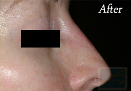 Juvederm New Orleans - Case 6, After