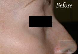 Juvederm New Orleans - Case 6, Before