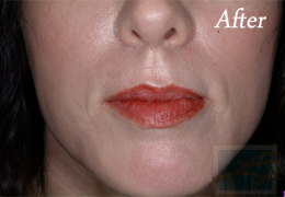 Juvederm New Orleans - Case 7, After
