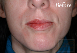 Juvederm New Orleans - Case 7, Before