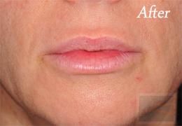 Juvederm New Orleans - Case 8, After