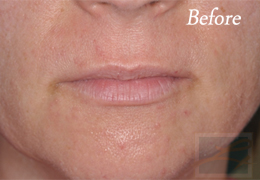 Juvederm New Orleans - Case 8, Before