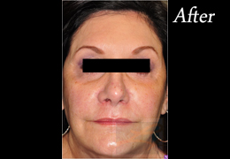 Juvederm New Orleans - Case 12, After