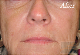 Juvederm New Orleans - Case 11, After
