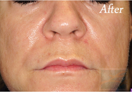 Juvederm New Orleans - Case 10, After