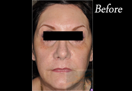 Juvederm New Orleans - Case 12, Before