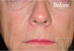 Juvederm New Orleans - Case 11, Before