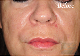 Juvederm New Orleans - Case 10, Before