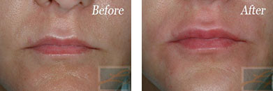 Juvederm - Before after gallery image 6
