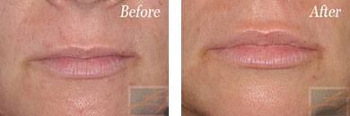 Juvederm - Before after gallery image 7