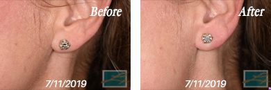 Juvederm - Before after gallery image 02