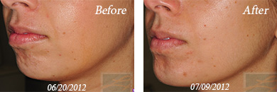 juvederm - Before/After Image 01