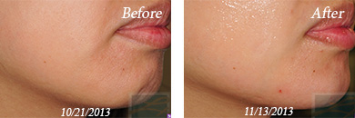 juvederm - Before/After Image 02