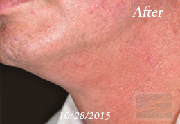 Kybella New Orleans - Case 10, After