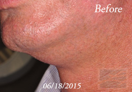 Kybella New Orleans - Case 10, Before