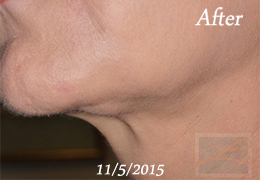 Kybella New Orleans - Case 11, After
