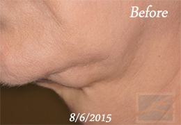 Kybella New Orleans - Case 11, Before