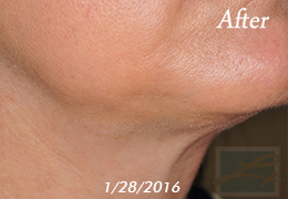 Kybella New Orleans - Case 12, After