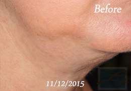 Kybella New Orleans - Case 12, Before