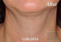 Kybella New Orleans - Case 13, After