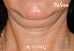 Kybella New Orleans - Case 13, Before