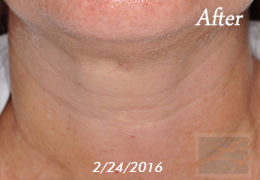 Kybella New Orleans - Case 14, After