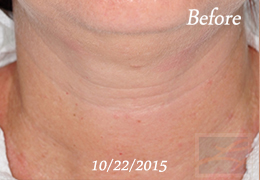 Kybella New Orleans - Case 14, Before
