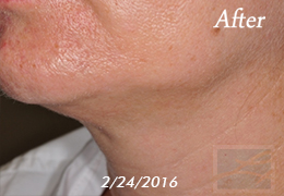 Kybella New Orleans - Case 15, After