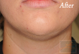 Kybella New Orleans - Case 2, After