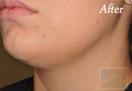 Kybella New Orleans - Case 3, After
