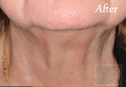 Kybella New Orleans - Case 4, After