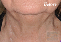 Kybella New Orleans - Case 4, Before