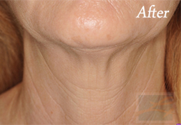 Kybella New Orleans - Case 6, After