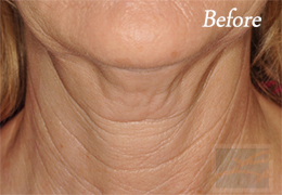 Kybella New Orleans - Case 6, Before