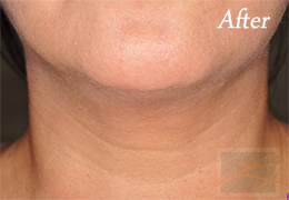 Kybella New Orleans - Case 8, After