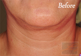 Kybella New Orleans - Case 8, Before