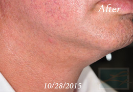Kybella New Orleans - Case 9, After